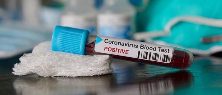 Нов калифорнийски вариант на коронавируса, наречен Дявола от Калифорния, привлече