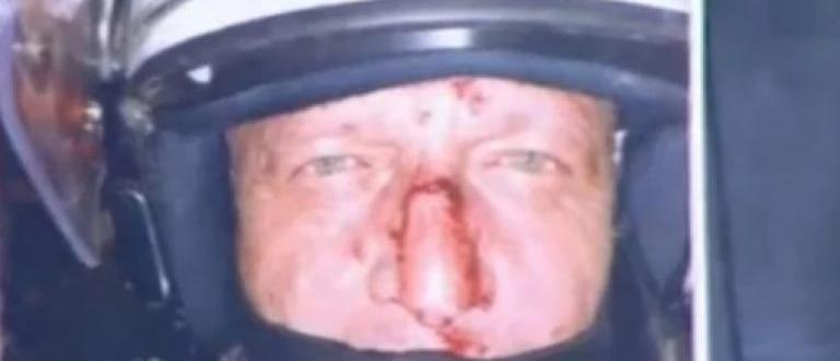 Стряскаща снимкана окървавен полицай показа какво са направили платените лумпени